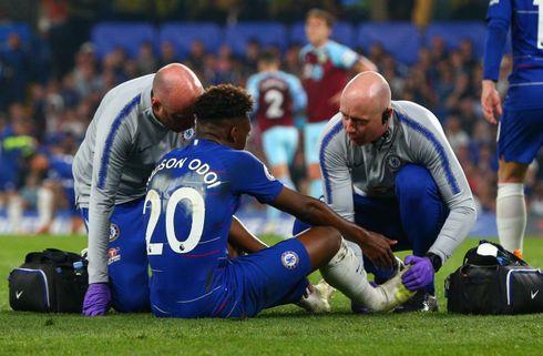 Chelsea skuffede og smed point mod Burnley